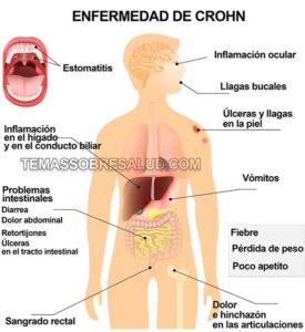 Un primer acercamiento con la enfermedad de Crohn