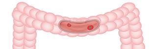 colitis ulcerosa calprotectina fecal