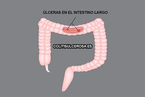 Factores que aumentan los riesgos de la colitis ulcerosa