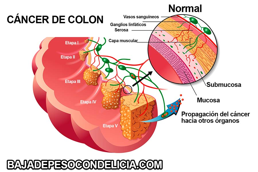 Aumento del riesgo de cáncer de colon