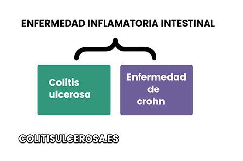 10 puntos que debes saber sobre la colitis ulcerosa